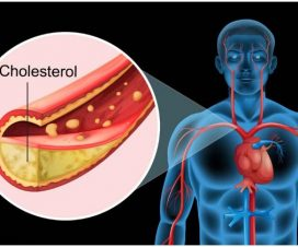 stress-and-cholesterol