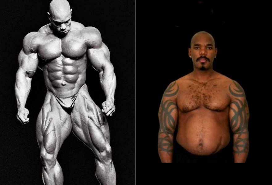 Before and After Steroids DeTransformations, Bodybuilders That Lost It All