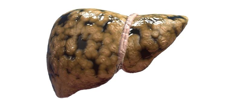 liver cleansing beverage