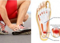 Plantar Fasciitis jogger's heel