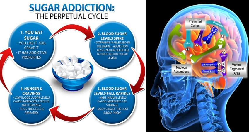 sugar-addiction-brain-scan