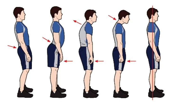 Kết quả hình ảnh cho Fix Your Posture