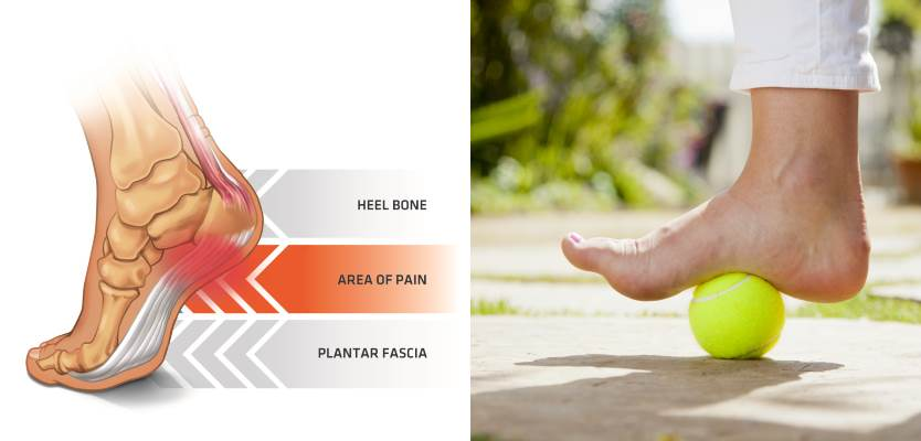 how-to-use-a-tennis-ball-to-get-rid-of-plantar-fasciitis-pain-in-minutes
