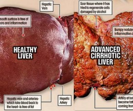 liver-damage-symptoms