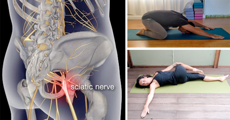 yoga-poses-to-relieve-sciatica-pain