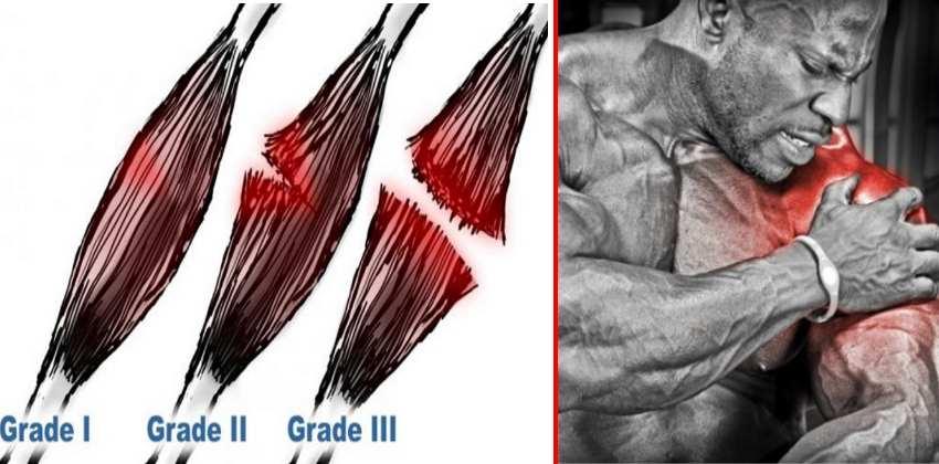 muscle-strain