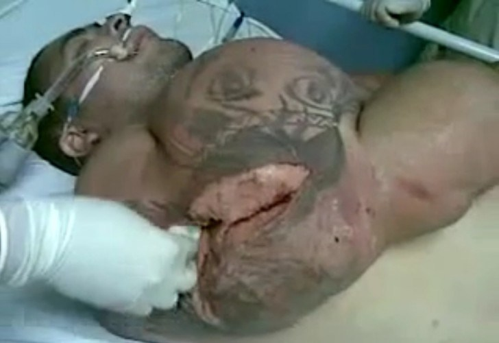 Brazilian-man-synthol-use-arm-exploded